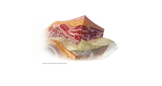 Gore Synecor Intraperitoneal biyomateryali piyasaya sürdü